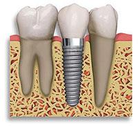 implant-vis