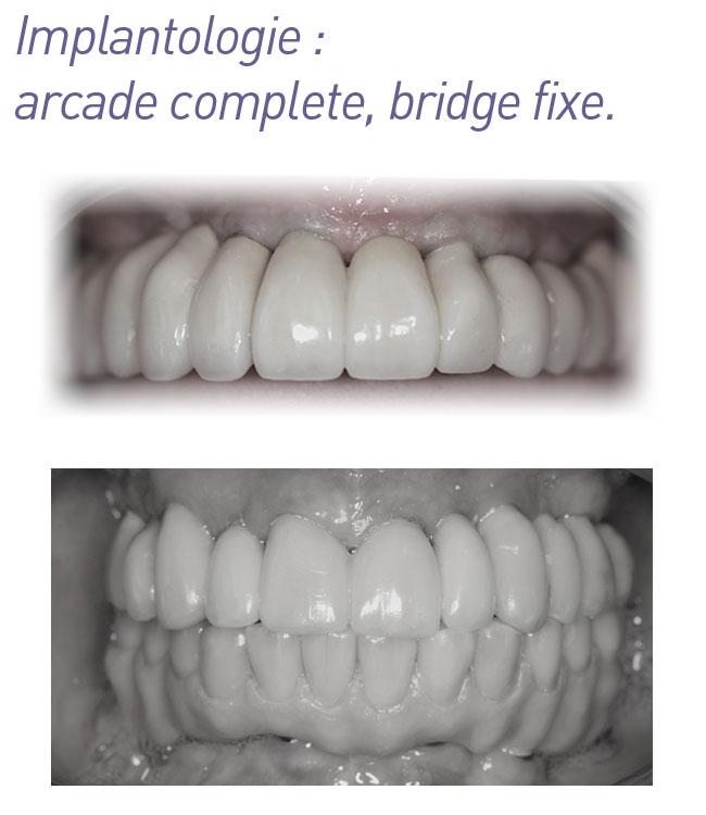implantologie-arcade_complete