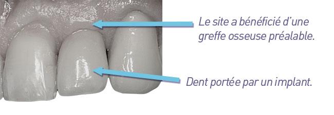 implantologie-dent_unitaire