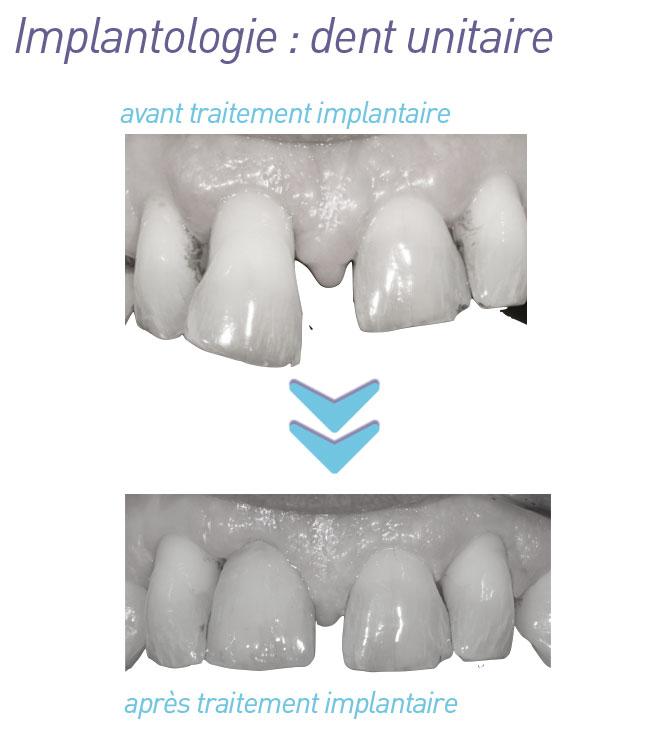 implantologie-dent_unitaire_avant-apres