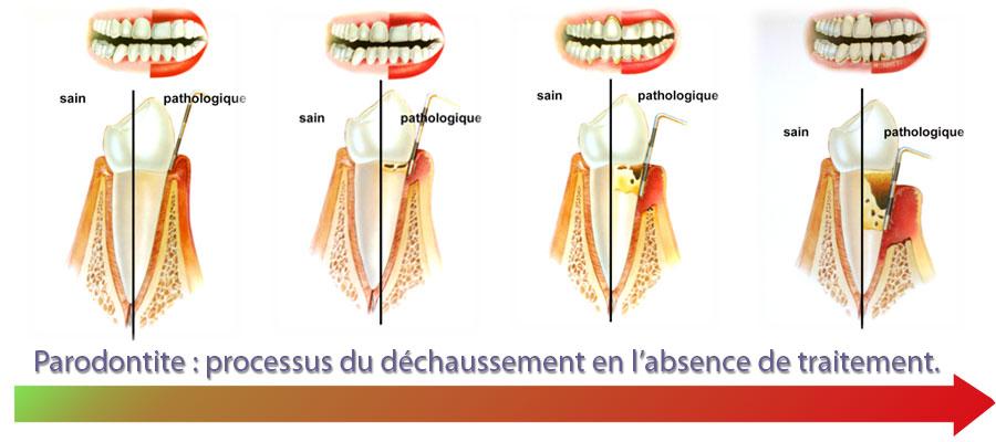 parodontologie04